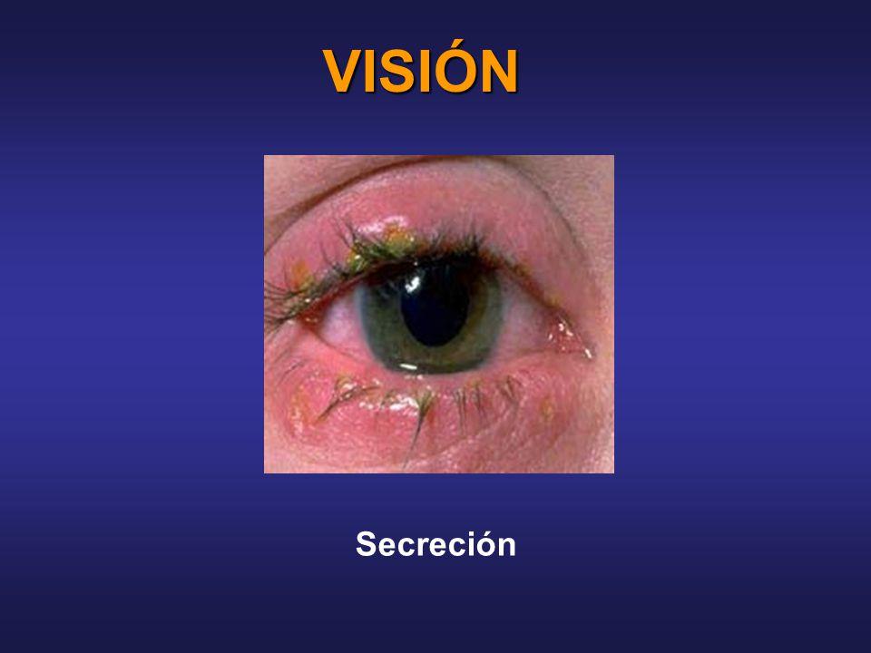 VISIÓN Secreción