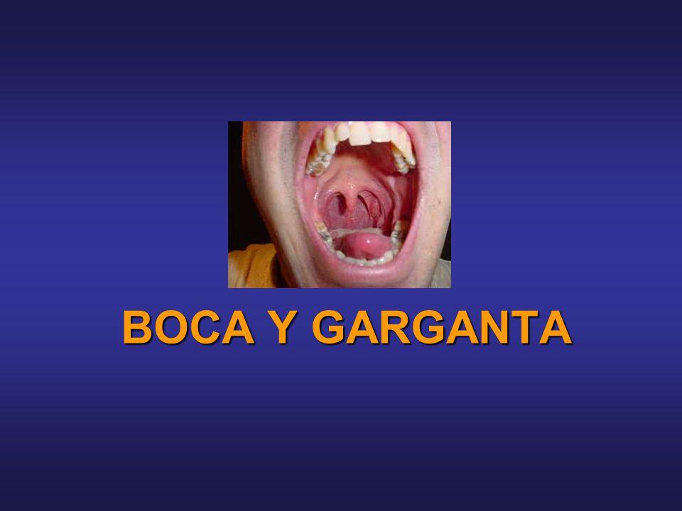 BOCA Y GARGANTA