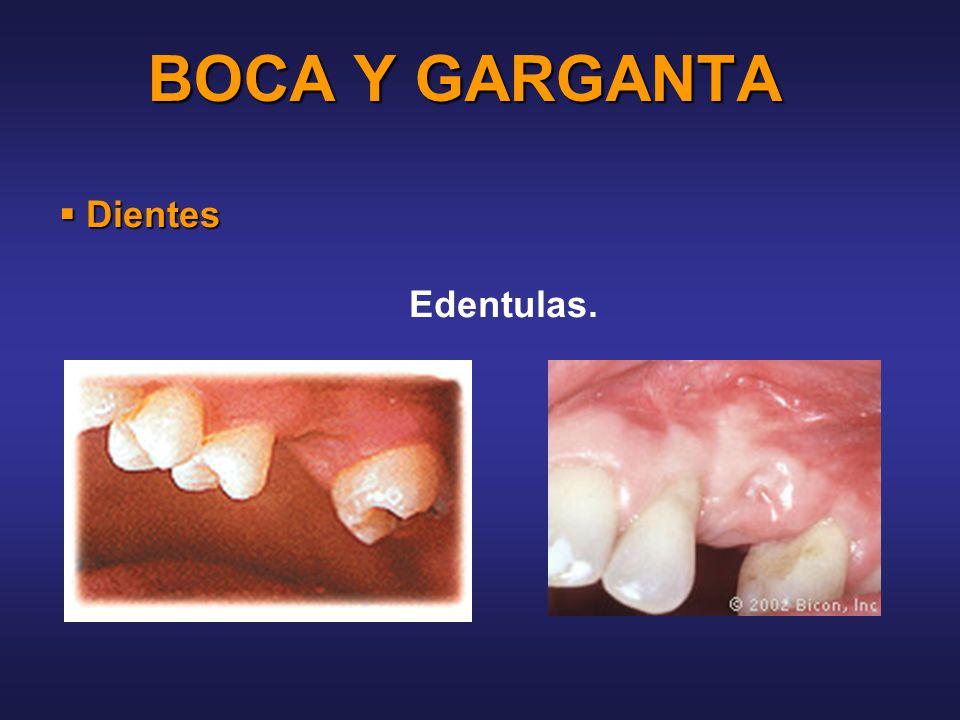BOCA Y GARGANTA Dientes Edentulas.