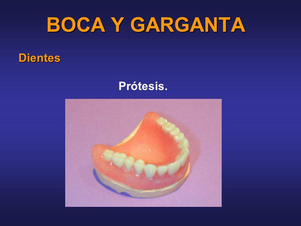 BOCA Y GARGANTA Dientes Prótesis.