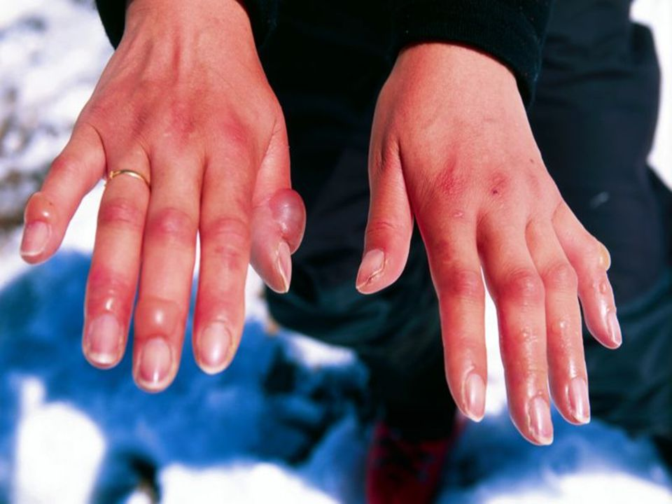 Foto de unas manos congeladas.