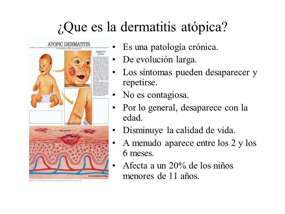 ¿Que es la dermatitis atópica