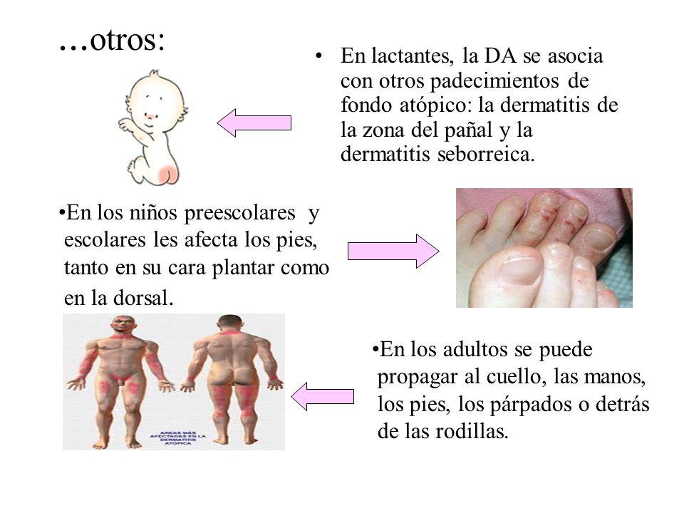 ...otros: En lactantes, la DA se asocia con otros padecimientos de fondo atópico: la dermatitis de la zona del pañal y la dermatitis seborreica.
