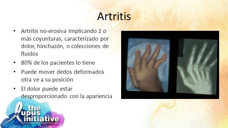 Artritis Artritis no-erosiva implicando 2 o más coyunturas, caracterizado por dolor, hinchazón, o colecciones de fluidos.