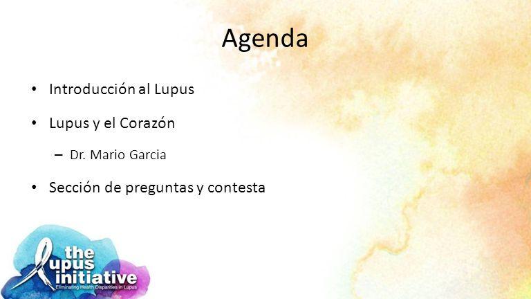 Agenda Introducción al Lupus Lupus y el Corazón