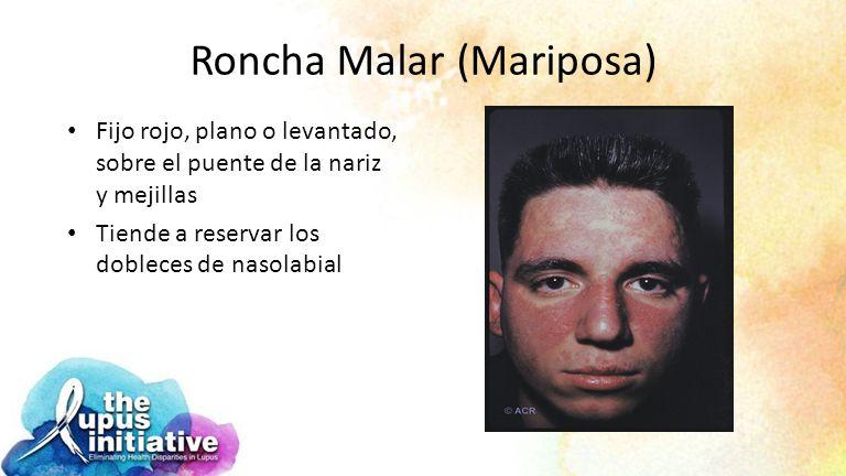Roncha Malar (Mariposa)