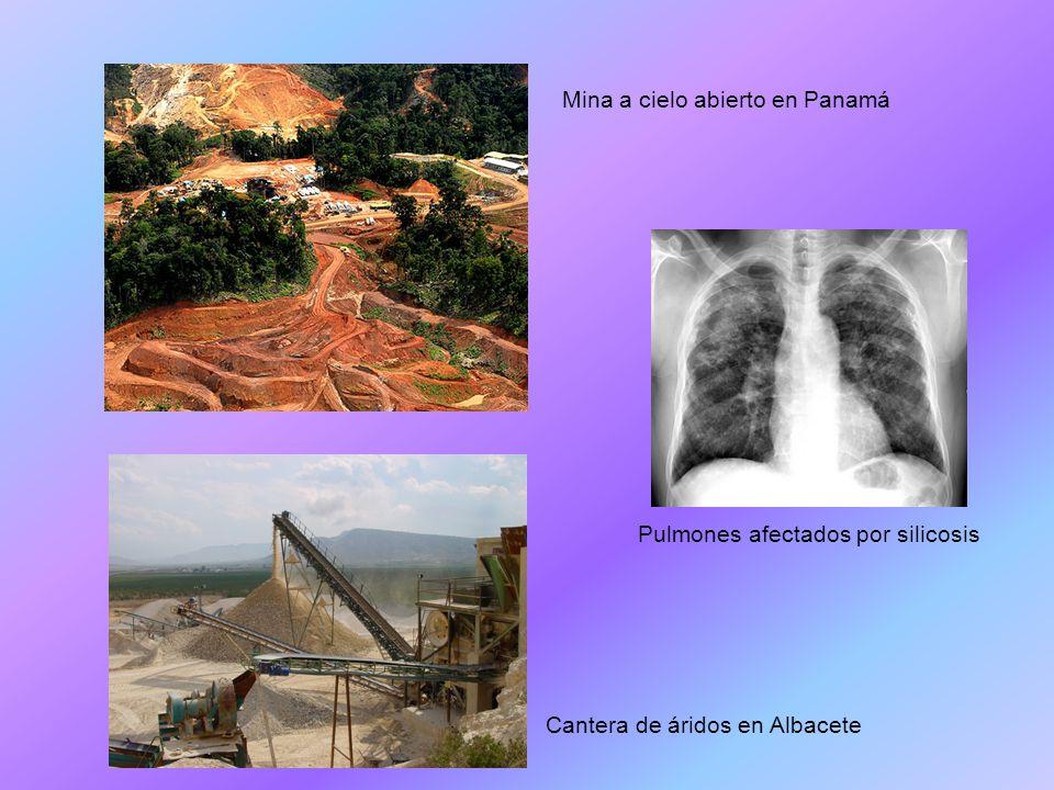 Pulmones afectados por silicosis