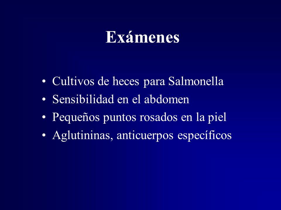 Exámenes Cultivos de heces para Salmonella Sensibilidad en el abdomen