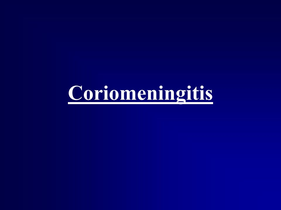 Coriomeningitis