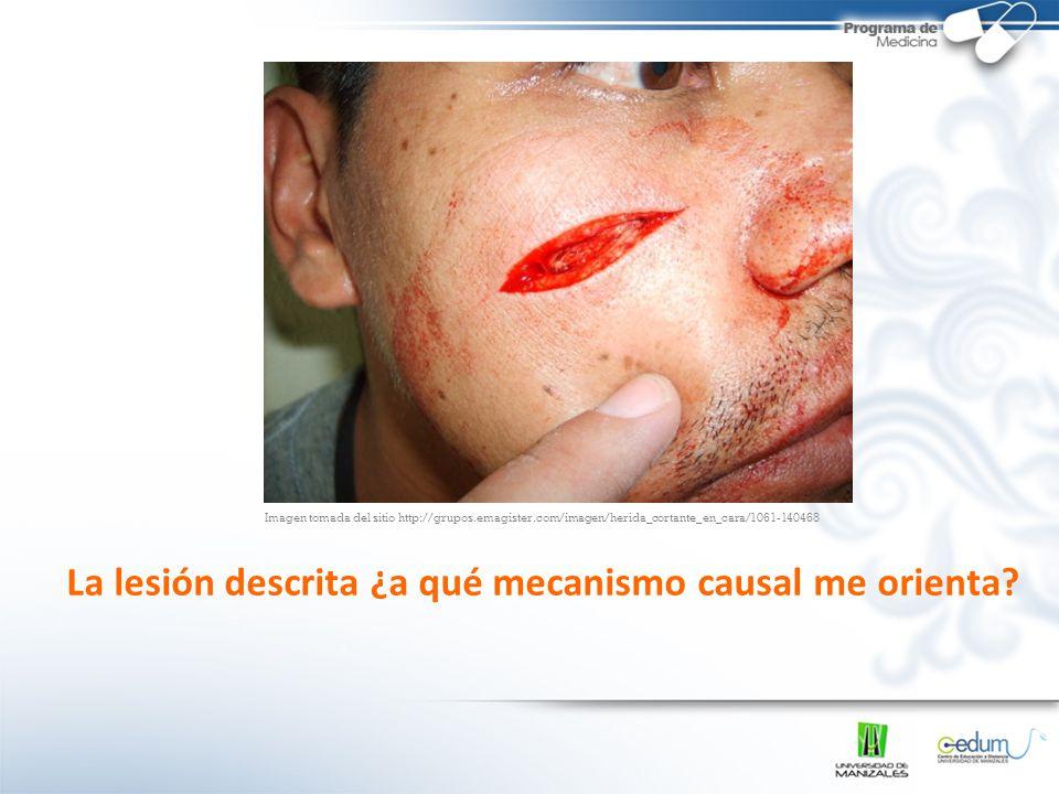 La lesión descrita ¿a qué mecanismo causal me orienta