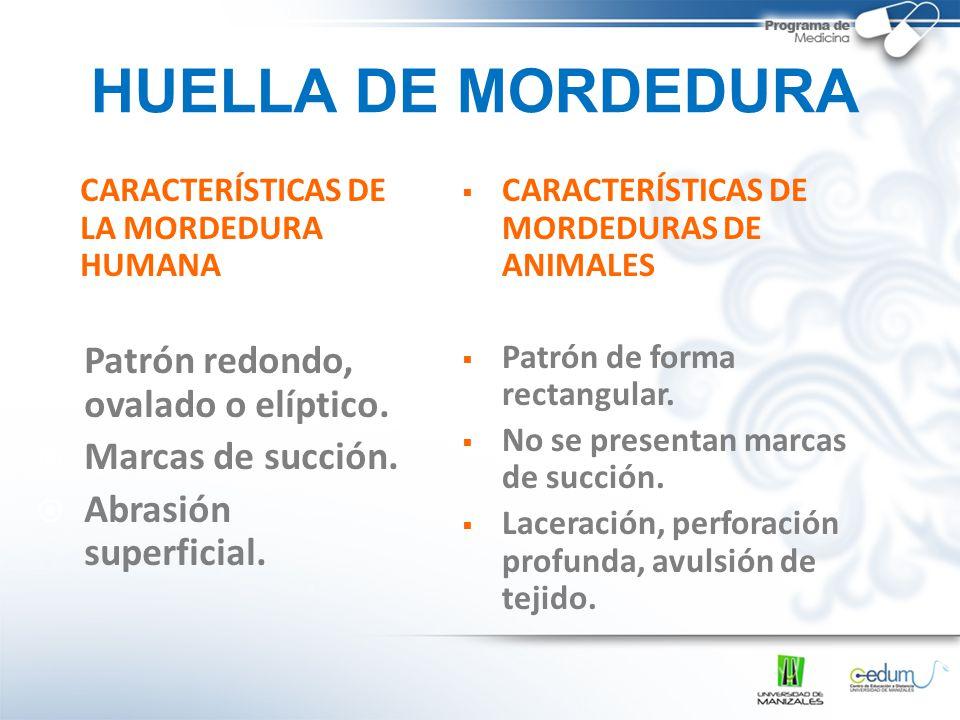 HUELLA DE MORDEDURA Patrón redondo, ovalado o elíptico.