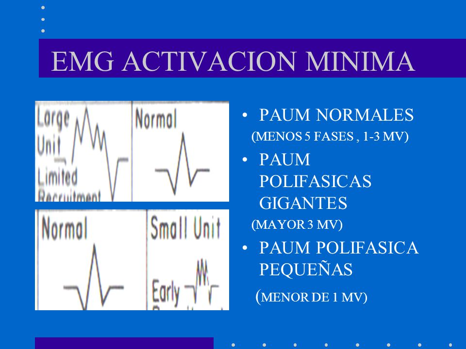 EMG ACTIVACION MINIMA PAUM NORMALES PAUM POLIFASICAS GIGANTES