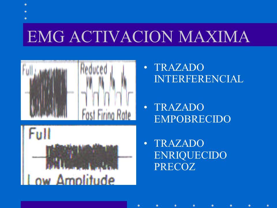 EMG ACTIVACION MAXIMA TRAZADO INTERFERENCIAL TRAZADO EMPOBRECIDO