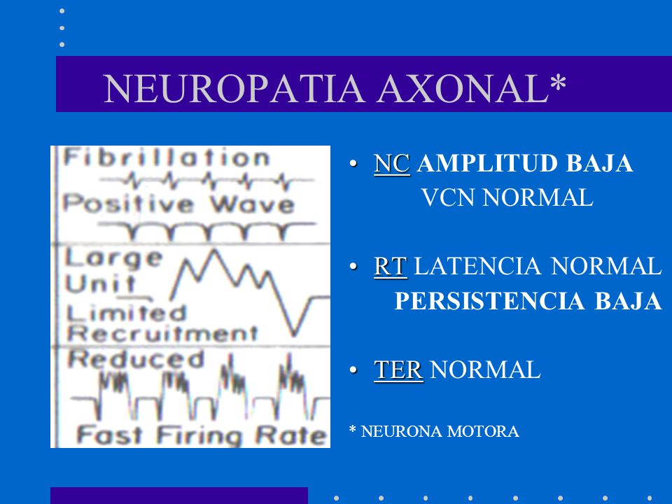 NEUROPATIA AXONAL* NC AMPLITUD BAJA VCN NORMAL RT LATENCIA NORMAL
