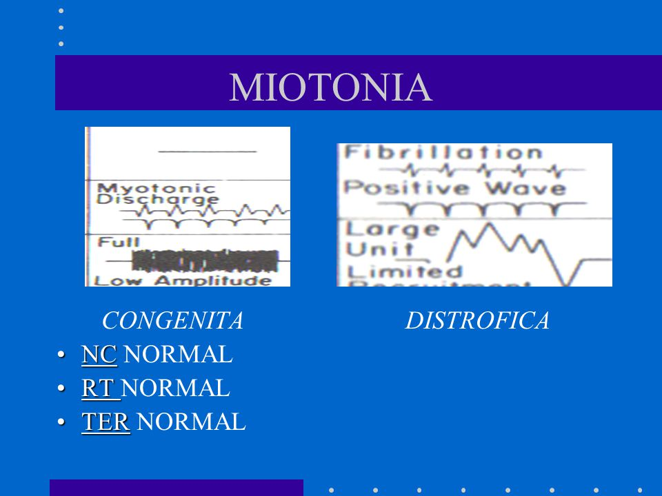 MIOTONIA CONGENITA DISTROFICA NC NORMAL RT NORMAL TER NORMAL
