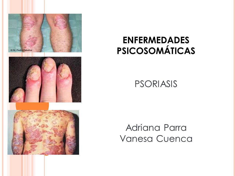ENFERMEDADES PSICOSOMÁTICAS