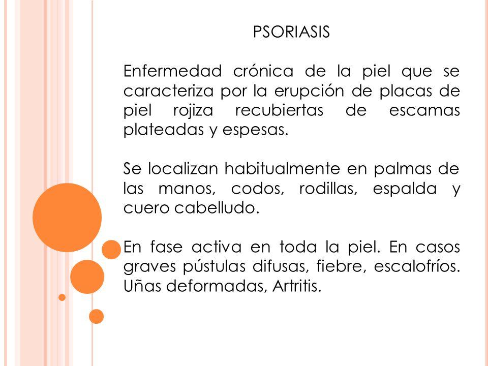PSORIASIS Enfermedad crónica de la piel que se caracteriza por la erupción de placas de piel rojiza recubiertas de escamas plateadas y espesas.