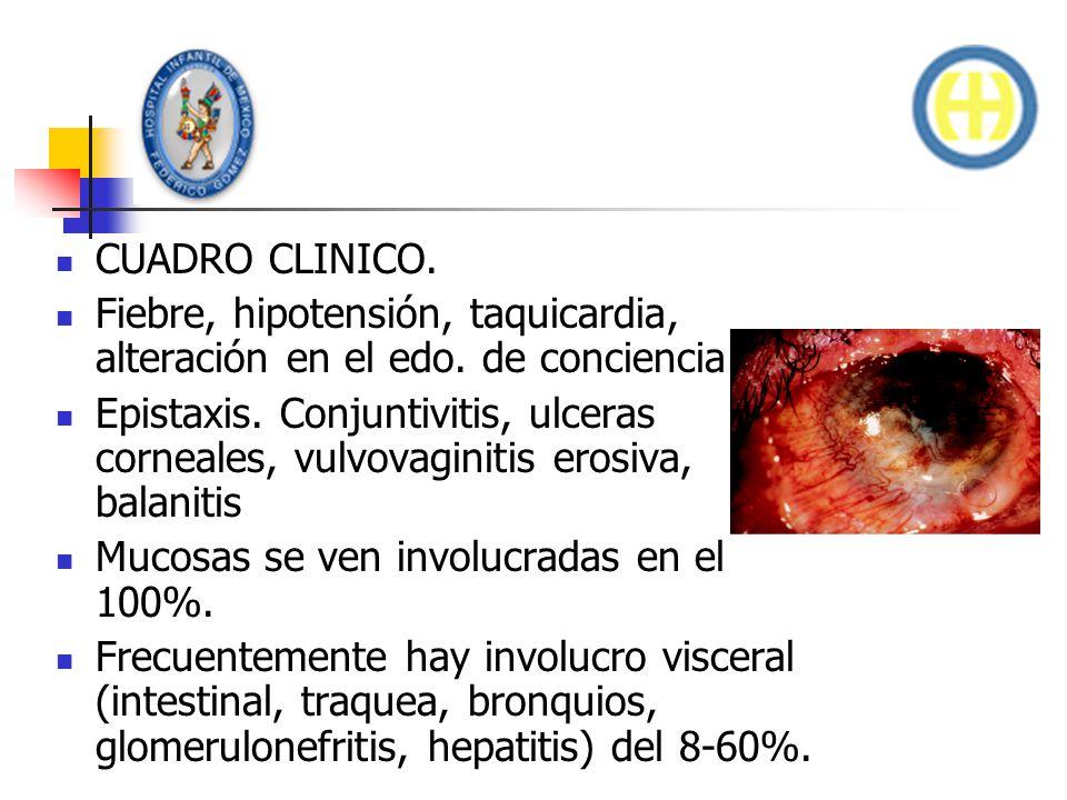 CUADRO CLINICO. Fiebre, hipotensión, taquicardia, alteración en el edo. de conciencia.