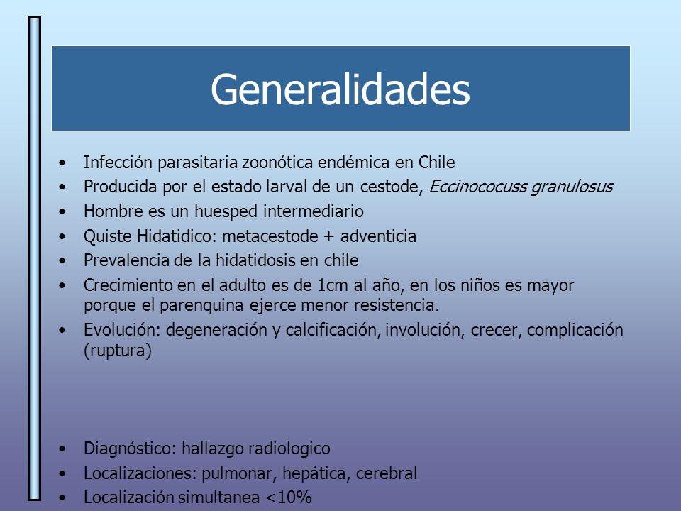 Generalidades Infección parasitaria zoonótica endémica en Chile