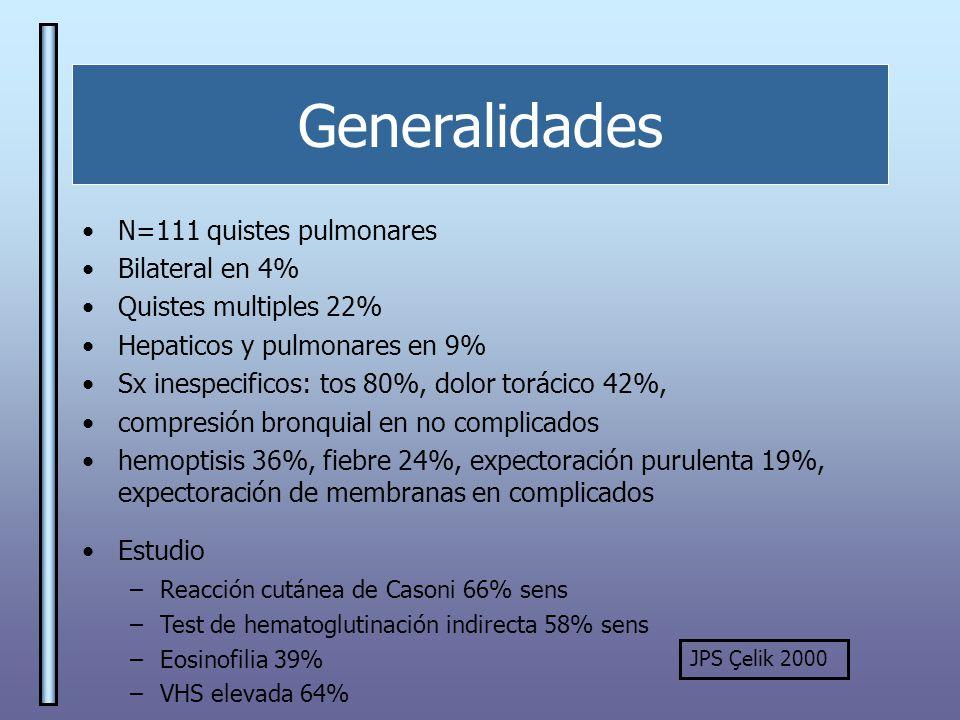 Generalidades N=111 quistes pulmonares Bilateral en 4%