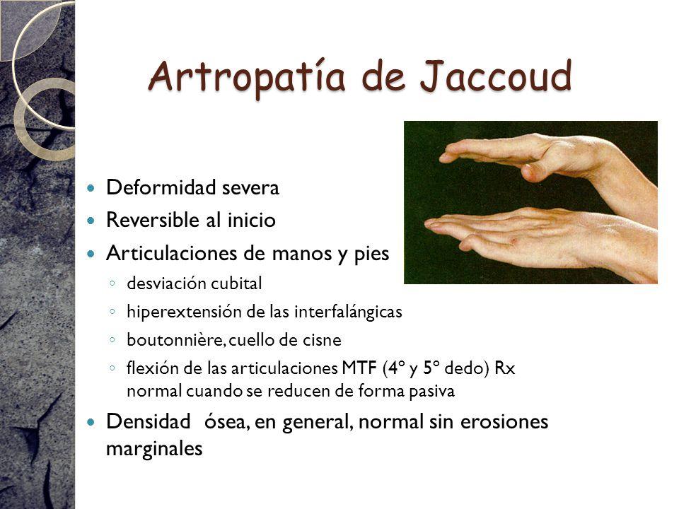 Artropatía de Jaccoud Deformidad severa Reversible al inicio