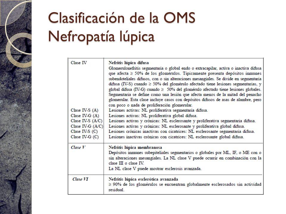 Clasificación de la OMS Nefropatía lúpica