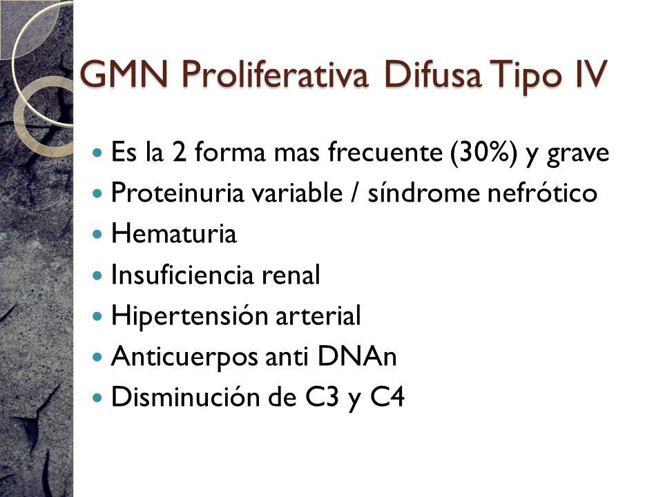 GMN Proliferativa Difusa Tipo IV