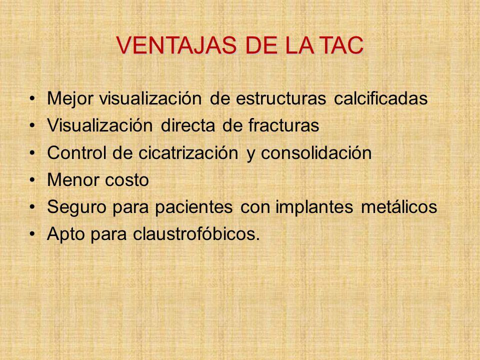 VENTAJAS DE LA TAC Mejor visualización de estructuras calcificadas