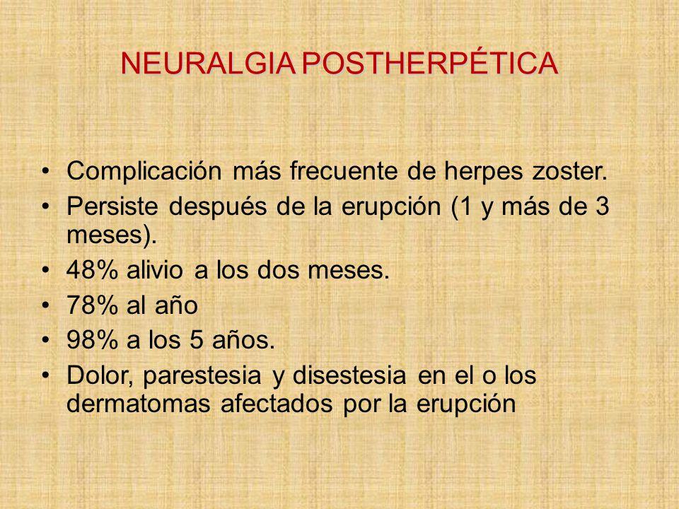 NEURALGIA POSTHERPÉTICA