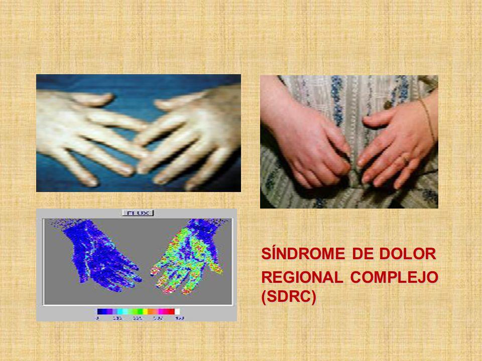 SÍNDROME DE DOLOR REGIONAL COMPLEJO (SDRC)