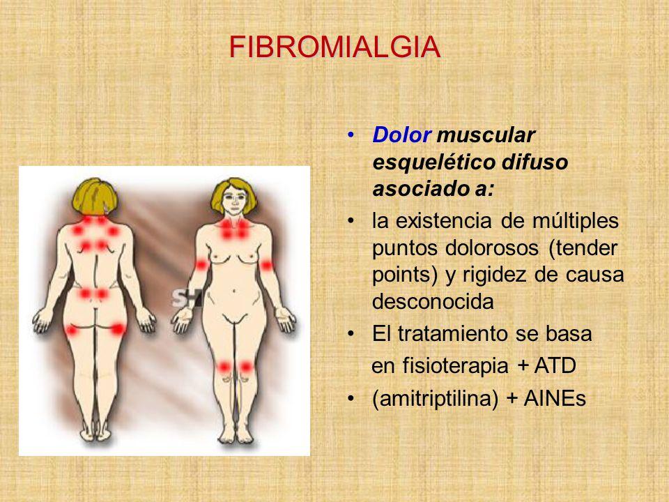 FIBROMIALGIA Dolor muscular esquelético difuso asociado a: