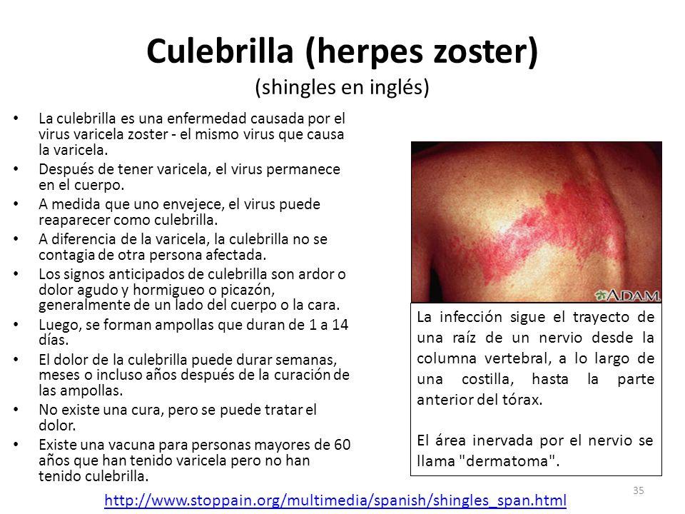 Culebrilla (herpes zoster) (shingles en inglés)