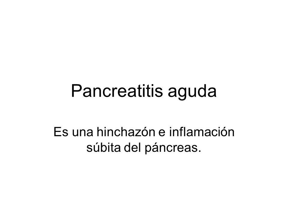 Es una hinchazón e inflamación súbita del páncreas.