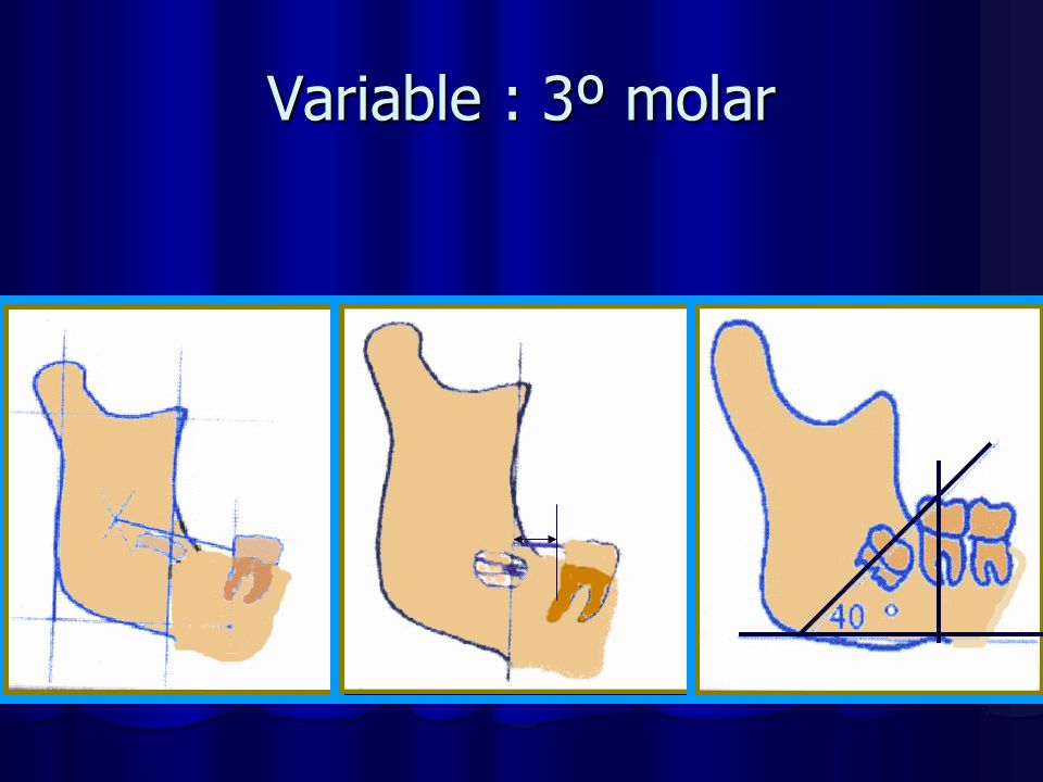Variable : 3º molar