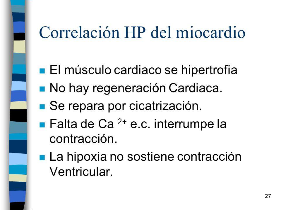 Correlación HP del miocardio
