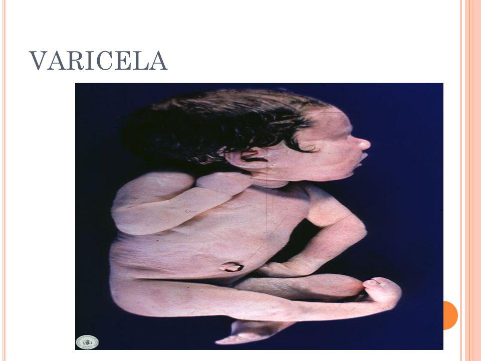 varicela