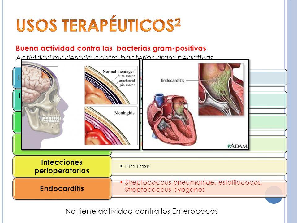 USOS TERAPÉUTICOS2 Buena actividad contra las bacterias gram-positivas