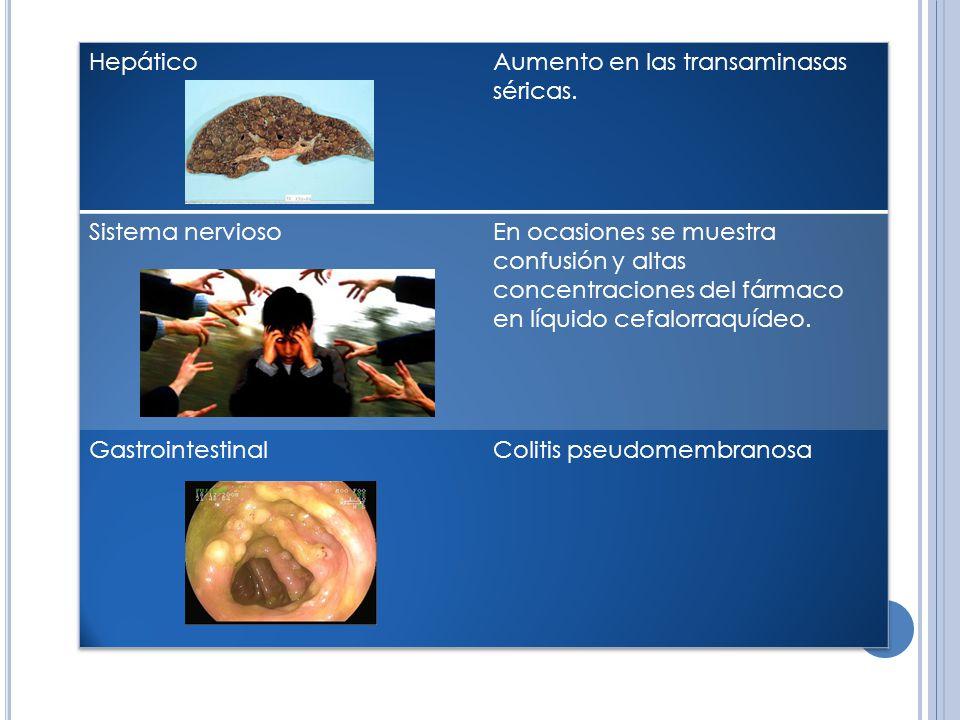 Hepático Aumento en las transaminasas séricas. Sistema nervioso.