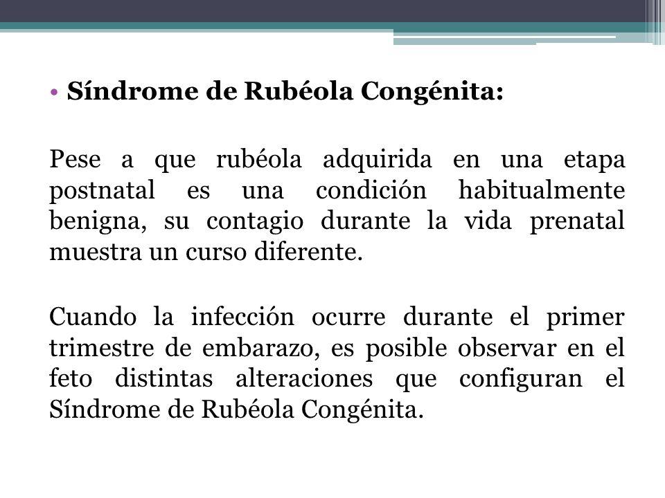 Síndrome de Rubéola Congénita: