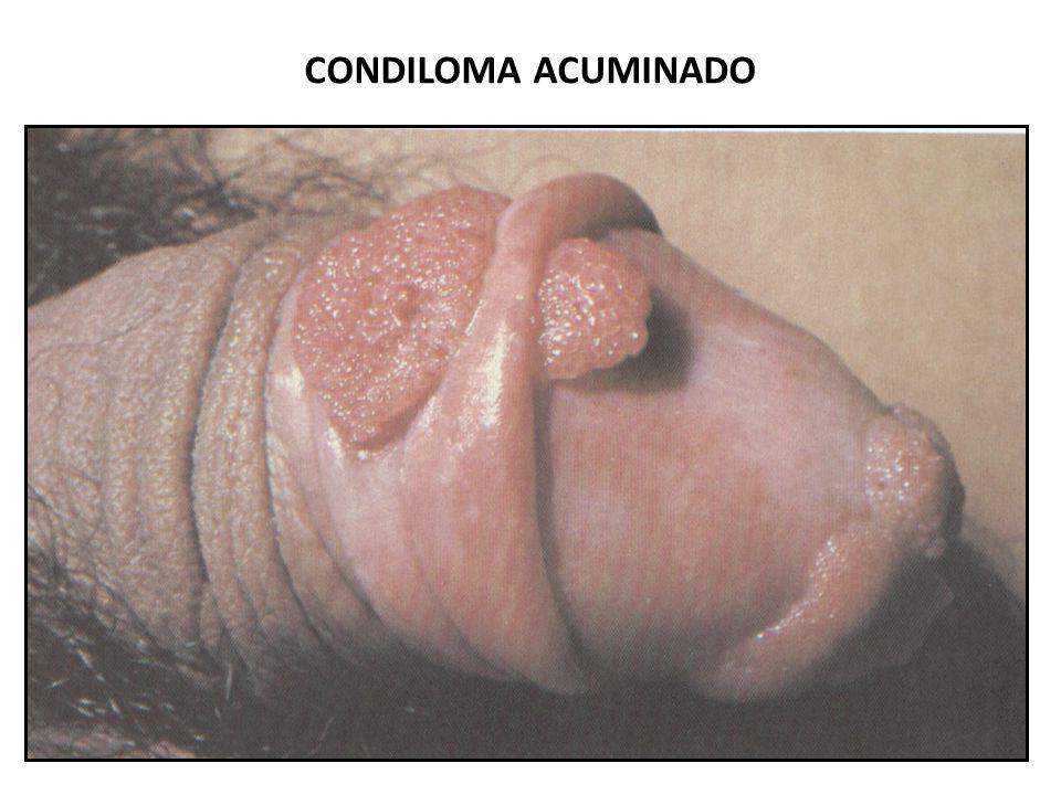 CONDILOMA ACUMINADO