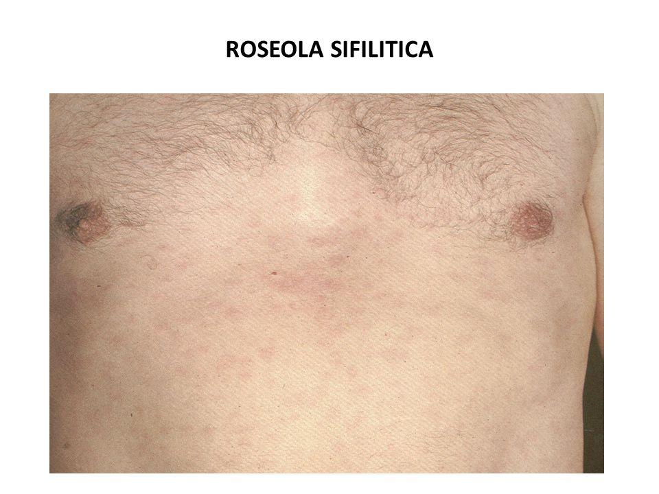 ROSEOLA SIFILITICA