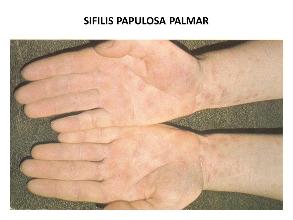 SIFILIS PAPULOSA PALMAR