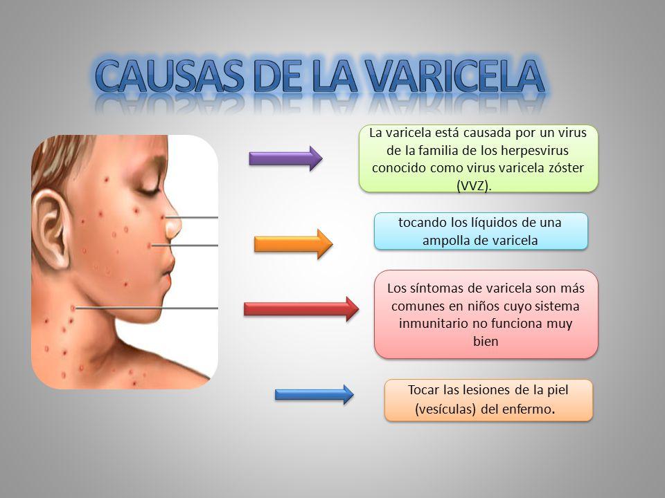 Causas de la varicela La varicela está causada por un virus de la familia de los herpesvirus conocido como virus varicela zóster (VVZ).