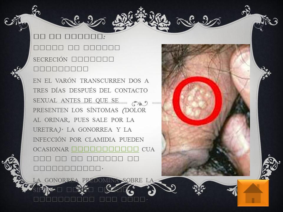En el hombre: dolor al orinar. secreción uretral purulenta.