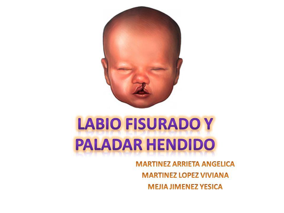 LABIO FISURADO Y PALADAR HENDIDO - ppt video online descargar