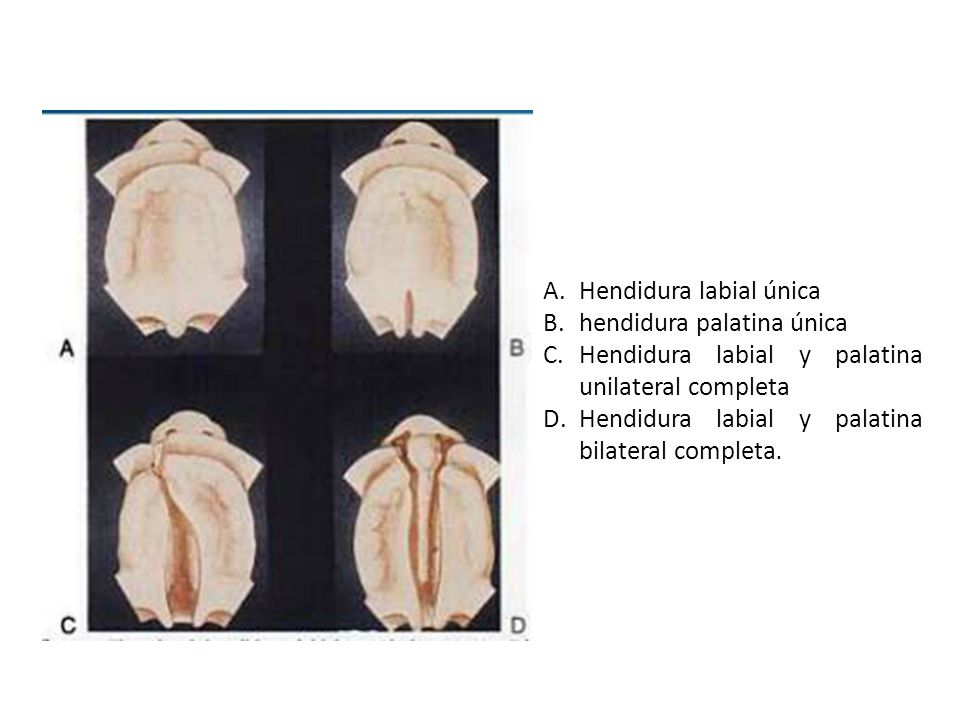 Hendidura labial única