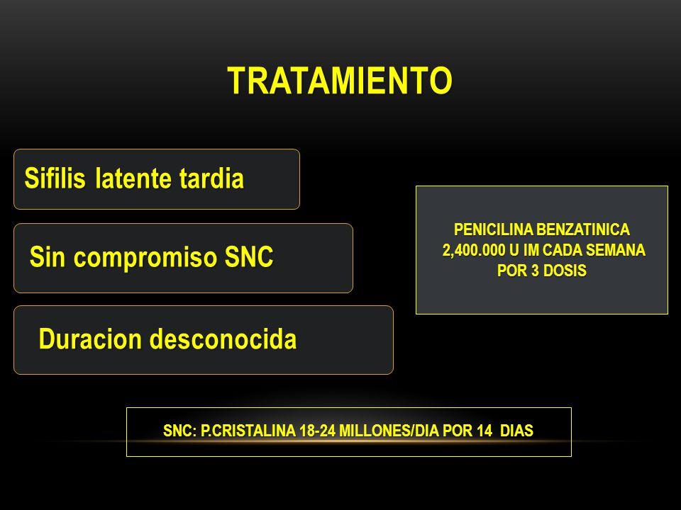 tratamiento Sifilis latente tardia Sin compromiso SNC