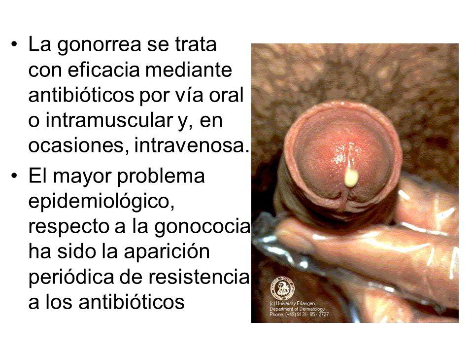 La gonorrea se trata con eficacia mediante antibióticos por vía oral o intramuscular y, en ocasiones, intravenosa.