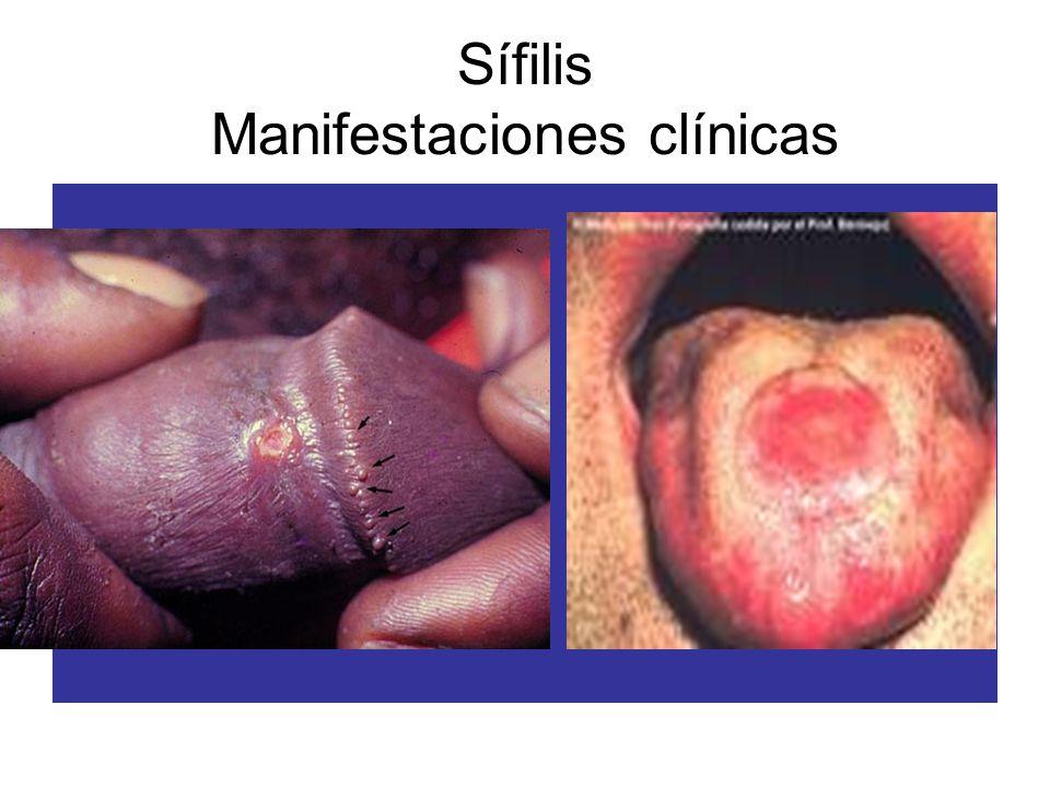 Sífilis Manifestaciones clínicas