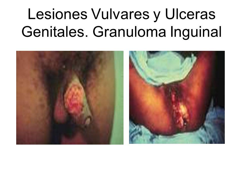 Lesiones Vulvares y Ulceras Genitales. Granuloma Inguinal